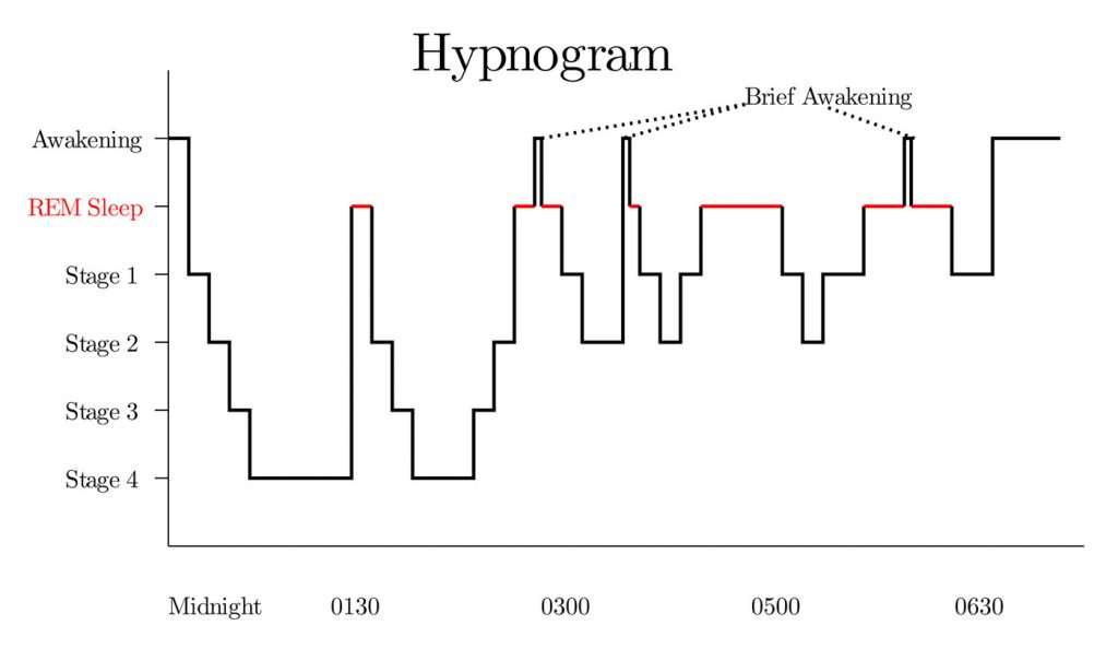 hypnogram graph of sleep cycles